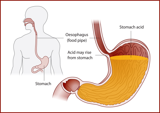 Image of Stomach and Oesophagus
